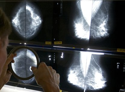 A radiologist uses a magnifying glass to check mammograms for breast cancer