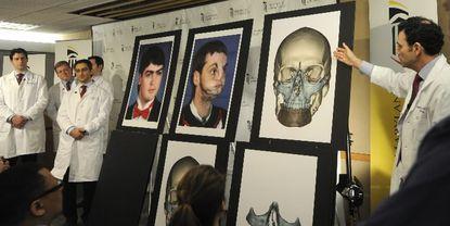 Man receives face transplant at Maryland Shock Trauma