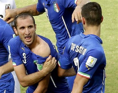 Italy's Giorgio Chiellini displays his shoulder showing apparent teeth marks after colliding with the mouth of Uruguay's Luis Suarez during the group D World Cup soccer match between Italy and Uruguay at the Arena das Dunas in Natal, Brazil, Tuesday, June 24, 2014. (AP Photo/Hassan Ammar)