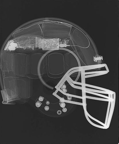 Devices help alert teams to potential concussions on the field