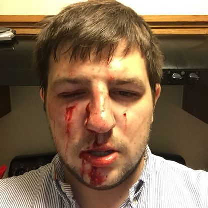 """Steven """"DJ Lemz"""" Lemmerman after being attacked on Charles and Fayette."""