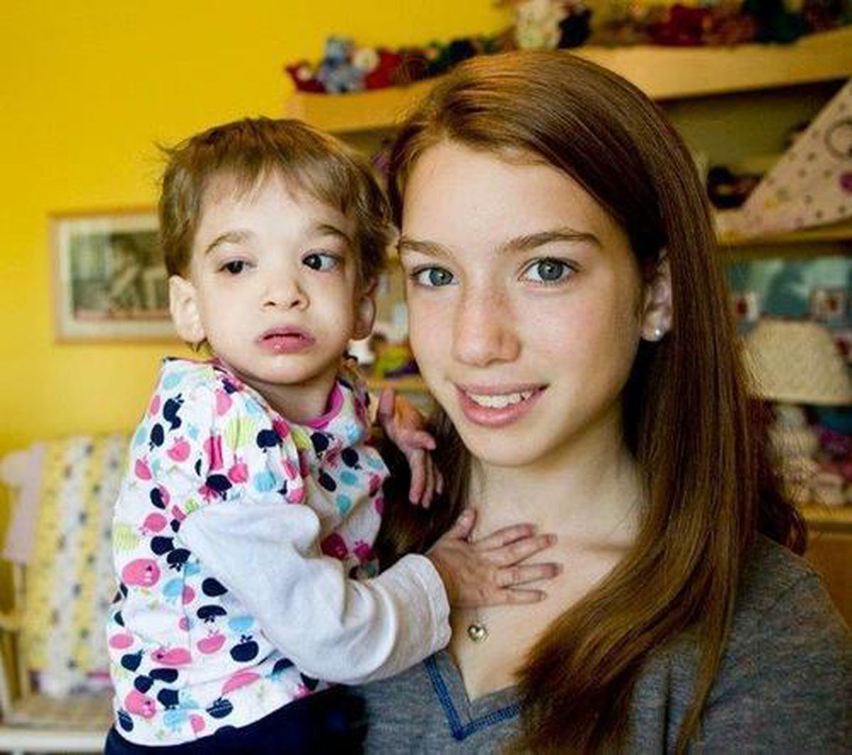 Brooke Greenberg, 20, who suffered from rare genetic condition, dies -  Baltimore Sun