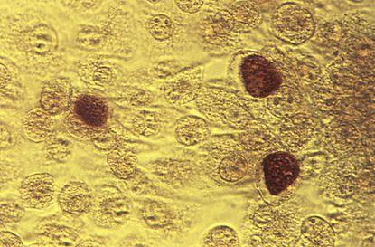 This 1975 microscope image made available by the Centers for Disease Control and Prevention shows Chlamydia trachomatis bacteria magnified 200 times. A report by the CDC released Wednesday says infections from three sexually spread diseases have hit another record high. Chlamydia was the most common. More than 1.5 million cases were reported in the U.S. last year, up 6 percent from the year before.